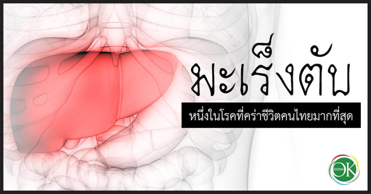 มะเร็งตับ หนึ่งในโรคที่คร่าชีวิตคนไทยมากที่สุด